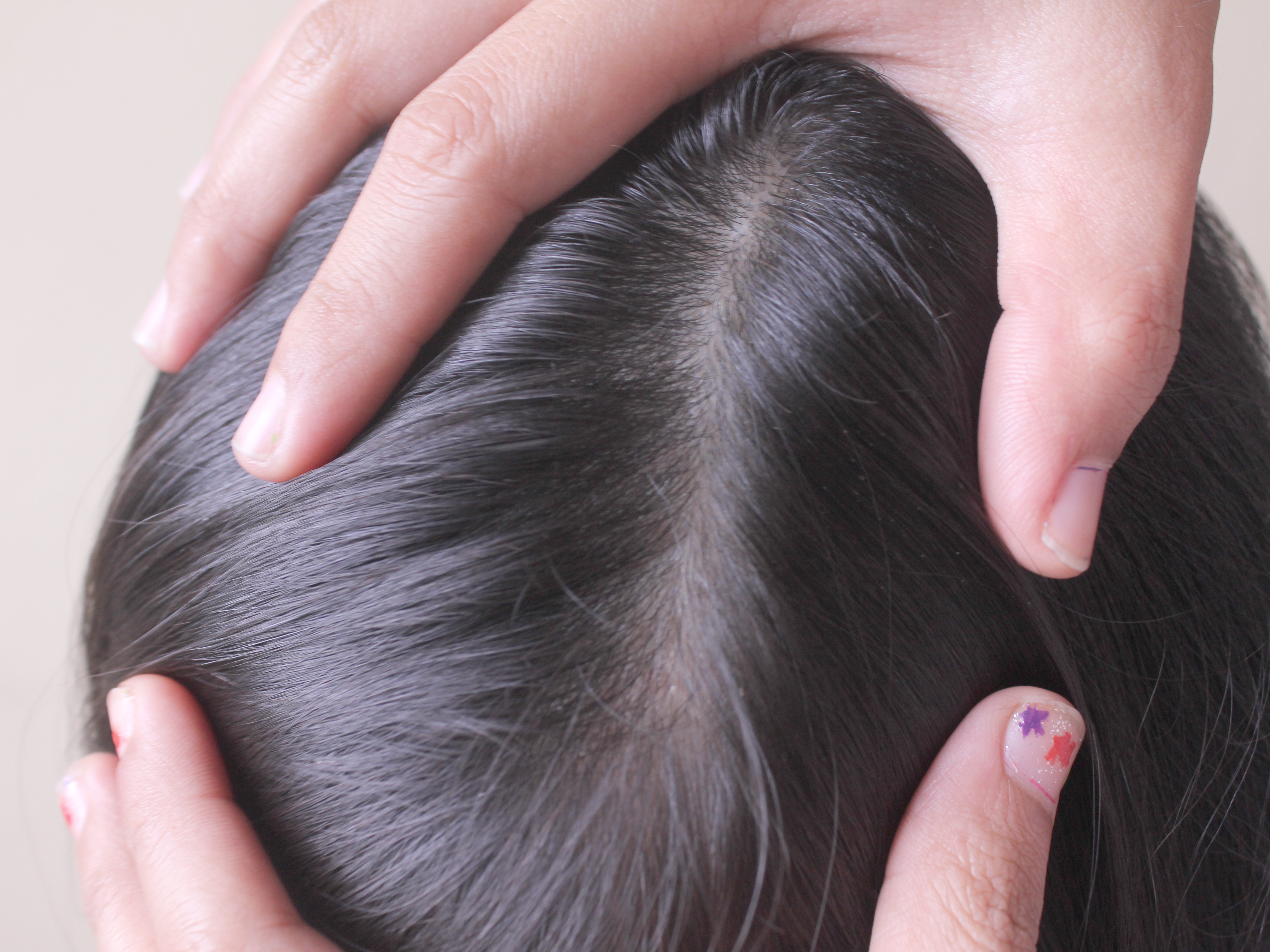 Head lice in adults with color treated hair